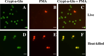 Cryptosporidium propidium monoazide-PCR, a molecular biology-based technique for genotyping of viable Cryptosporidium oocysts.